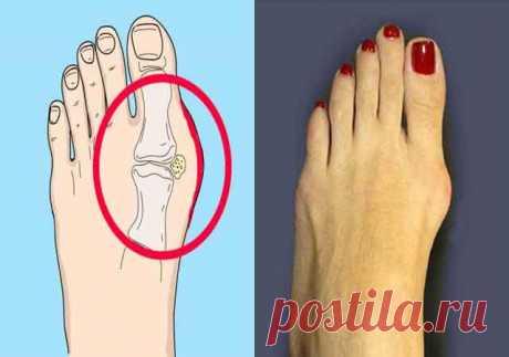 Вот Как в домашних условиях эффективно лечится шишка на ноге …