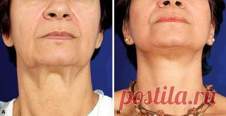 Толстой шеи и обвисшей кожи не будет: 3 упражнения для женщины в 50 лет | Жиросжигательный канал | Яндекс Дзен