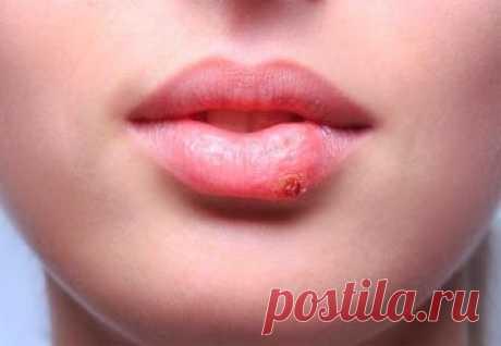 Простуда на губах. Народные средства от простуды на губах