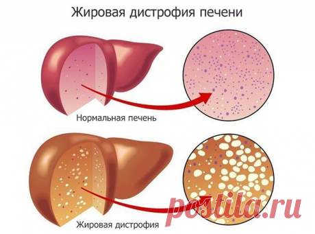 Ожирение печени | Доктор Гульнара Мазитова | Яндекс Дзен