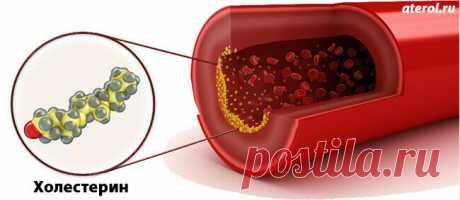 «Таблетки от холестерина очень хорошие, список ТОП-6 препаратов  Частично снизить риск серьезных болезней помогут таблетки от холестерина очень хорошие, список таких препаратов довольно большой, без консультации у доктора их лучше не принимать » — карточка пользователя Ben B. в Яндекс.Коллекциях