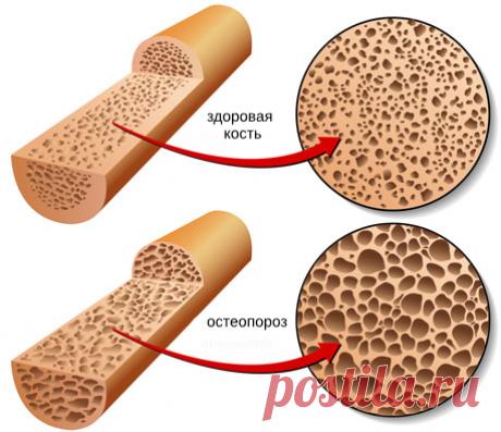 7 важных мер для предотвращения остеопороза