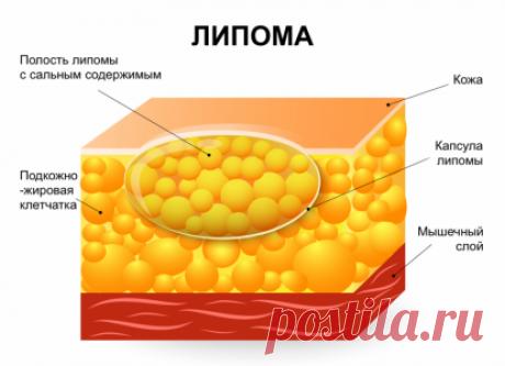 Как вылечить подкожные жировики на теле