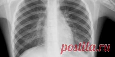 При каких симптомах пневмонии вызывать врача, а при каких — скорую Пневмония изматывает кашлем, болью и лихорадкой, а закончиться может дыхательной недостаточностью, сепсисом и даже смертью. Только в России каждый год ею болеют до 1,5 млн человек. Что делать при воспалении лёгких и как от него защититься, выяснил Лайфхакер.