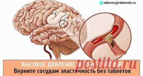 Высокое давление и шум в голове: Верните сосудам эластичность без таблеток