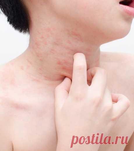 Сигналы кожи, которые предупреждают о серьезных заболеваниях / Будьте здоровы