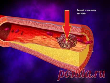 Атеросклероз убивает! Как не умереть от злощасной болезни?   Уход за здоровьем   Яндекс Дзен