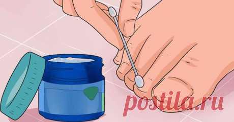 Эти 6 мощных средств устранят даже самый запущенный грибок ногтей! - Женский уголок