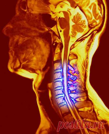 Как шейный остеохондроз влияет на наше состояние? +7 рецептов народной медицины от остеохондроза