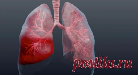Как выявить пневмонию на ранней стадии / Будьте здоровы