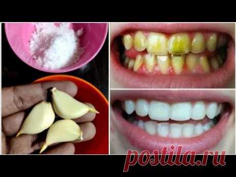 Отбеливание зубов всего за 2 минуты - как отбелить зубы в домашних условиях?  100% эффективность
