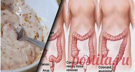 These two ingredients will bring kilograms of toxins out of a thick gut!\u000a\u000aThe food which we eat influences each part of our organism, especially our gastrointestinal tract. Toxins from food which you eat collect in body tissues and eventually it can cause serious problems with health, it as a lock, diarrhea, weak immune system and a lack of energy. The detoxication of a thick gut can become the solution of these diseases. It will also help you sweat...