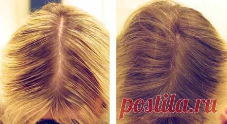 Всего два ингредиента и вы забудете о проблеме выпадения волос! | Зеркало Венеры