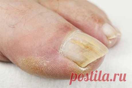 Народные методы лечения грибка ногтей / Будьте здоровы