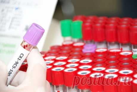Всё, что тебе необходимо знать о показателях крови. Сохрани обязательно!