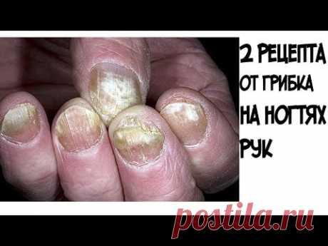 (2) ШОК!!!Эти два рецепта помогут избавиться от грибка на ногтях рук - YouTube