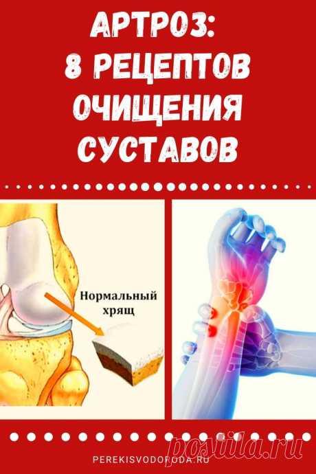 Артроз: 8 рецептов очищения суставов