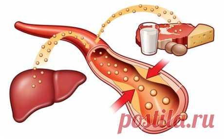 Холестерин. Содержание холестерина в продуктах питания. Продукты понижающие холестерин в крови.