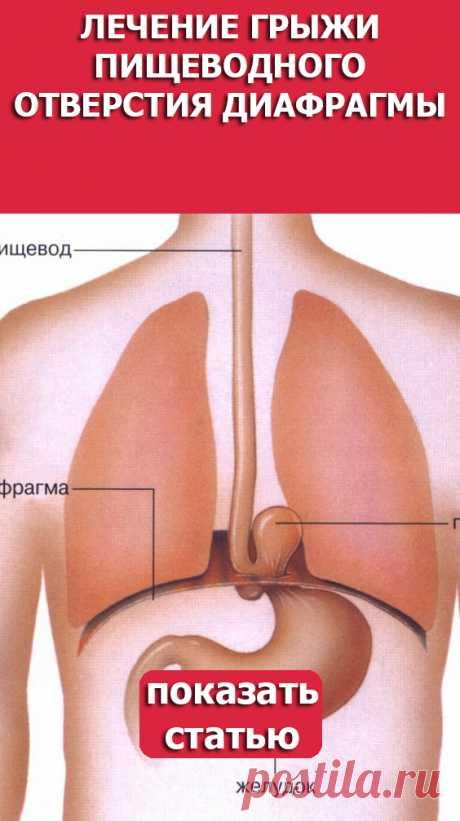 СМОТРИТЕ: Лечение грыжи пищеводного отверстия диафрагмы