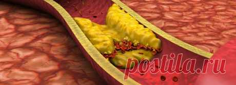 Холестерин, пошёл вон! Чесночно-лимонный рецепт очистит сосуды | Волковыск.BY