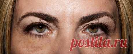 Как убрать синяки под глазами, если женщина в 60 лет страдала всю ночь бессонницей   Немного за 60   Яндекс Дзен