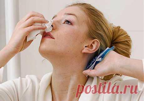 Носовое кровотечение: как остановить