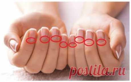 Если у вас есть «полумесяцы» на ногтях, то вам просто необходимо это знать! Внимательно смотрим на руки!