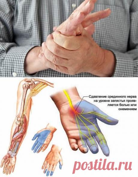 Немеют руки и ноги: причины и что делать