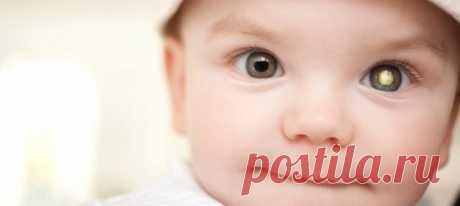 Ретинобластома: диагностика, профилактика и лечение. Ретинобластома у детей выявляется достаточно быстро, обычно в первые два года жизни, если врач или родители внимательно осматривают малыша. В противном случае поздняя диагностика и несвоевременное лечение могут привести к