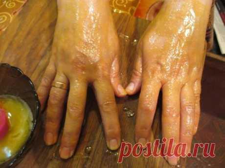 """Мазь """"Ухоженные ручки"""" - убирает морщины, пигментные пятна и трещины на руках Моя мама готовит мазь, которая отлично помогает избавиться от трещин и пигментных пятен на руках с омолаживающим эффектом. Сначала растворяет в 1 л теплой воды 2 ст.л. соли и держит в этом растворе руки 10 минут. Затем, не смывая его, промакивает ладони и смазывает их мазью (1 яичный желток + 1 ст.л. меда + 1 ст.л. растительного масла), смывает через 20 минут. Эффект замечательный: кожа рук становится мягкой, эласти"""