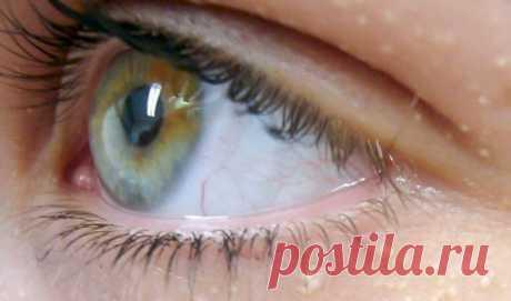 Ты даже не представляешь, о чём свидетельствует появление белых точек вокруг глаз! - Сайт для женщин