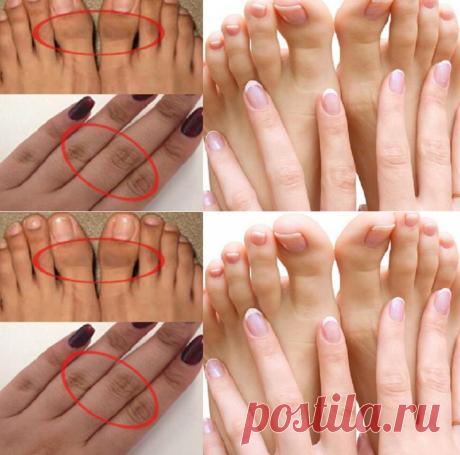 Удалите темную и грубую кожу и получите мягкие красивые руки - Советы на каждый день