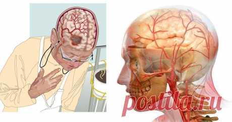 3 самых мощных рецепта для улучшения кровообращения в головном мозге! Благодаря этим средствам, сосуды становятся эластичными, исчезает головокружение, шум в ушах и головные боли!
