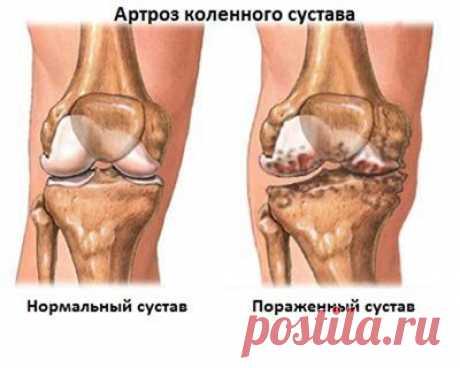 Деформирующий остеоартроз коленного сустава: симптомы, лечение, причины и последствия