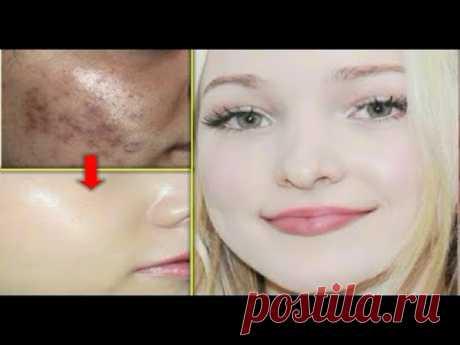 ДЕТСКАЯ КОЖА, КАК СНЕГ, 3 РАЗА | Отбеливание кожи - Средство для удаления пятен, средство для удален