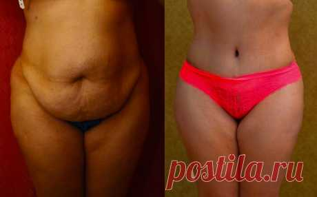 Упражнение «Яблоко и стул». Убирает подкожный жир на животе и снижает вес на -6 кг. за 14 дней. Простое и эффективное   Снежана   Яндекс Дзен