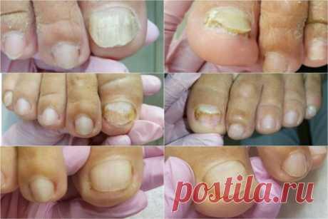 Чего боится грибок ногтей на ногах как огня: эффективные народные средства против онихомикоза Грибок ногтей боится как огня обычной - О грибке ногтей  Грибок ногтей, чего же он больше всего боится? ... Грибок ногтей – инфекция, с которой сложно бороться, потому что живучие микроорганизмы очень быстро распространяются не только на другие участки тела, но и могут