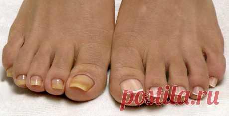 Как размягчить ногти Ногти на ногах, так же, как и на руках требуют постоянного ухода. Делать это приходится регулярно, так как они растут постоянно. И если их своевременно не срезать, они могут обламываться и терять свой привлекательный вид...