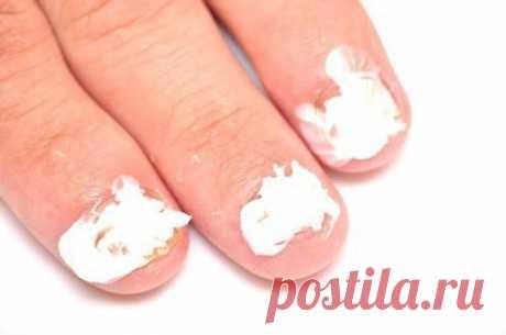 Лушее средство от грибка на ногтях | стилист маша | Яндекс Дзен