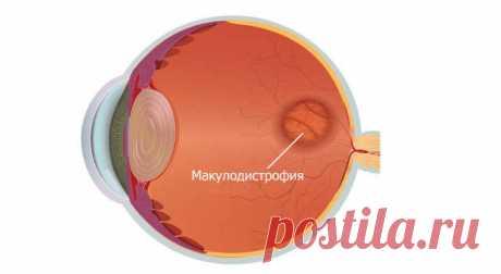 Виды, причины, диагностика и лечение макулодистрофии. Организм любого человека неизбежно стареет, в том числе и органы зрения. Возраст преподносит немало сюрпризов, одним из которых может оказаться макулодистрофия сетчатки глаза. Эта патология достаточно часто встречается среди пожилых людей: у каждого десятого после 65 лет, у каждого
