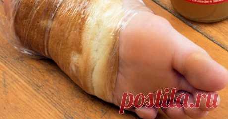 Она примотала к ноге кусочек хлеба и уснула. То, что случилось утром, стало абсолютной неожиданностью! Сухая мозоль на пальце ноги или на подошве — не только эстетическая проблема. Мозоли и натоптыши могут быть довольно болезненными, особенно если приходится носить закрытую и узкую обувь. Всё пройдет з…