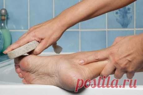 Волшебное средство для ваших пяточек. Моментальный эффект! - Сайт для женщин После обработки ног таким способом, ваши подошвы и пятки становятся гладкими и нежными, исчезают натоптыши! Если подошвы сильно запущены, нужно процедуру повторить несколько раз. Ничего не будет, кроме пользы! Берём небольшую мисочку (такого размера, чтобы только поместились в неё ноги), наливаем 1,5 литра воды, чтобы была горяченькая, но не очень. Добавляем в воду 4 столовых …
