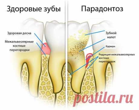 Чем лечить пародонтоз в домашних условиях  Пародонтоз (альвеолярная пиорея) — деструктивные изменения в связочном аппарате зуба, альвеоле и цементе корня, причиной которых являются нервно-дистрофические процессы, часто сопровождающиеся активн…