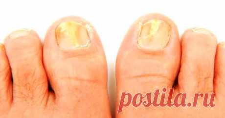 5 средств, которые помогут уничтожить грибок ногтей Этими рекомендациями советуют воспользоваться дерматологи. Вы сможете уничтожить грибок ногтей быстро и навсегда!  Как только вы заметили, что у вас появился грибок на ногтях, сразу же начинайте от не…