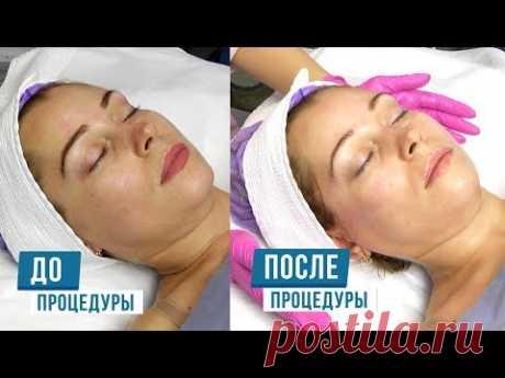 OxyGeneo 3 в 1: Очищение Питание Насыщение кожи кислородом + Лифтинг эффект