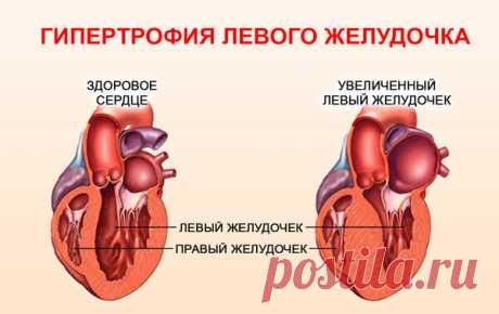 На какой руке мерять давление правильно | Здоровье сосудов | Яндекс Дзен