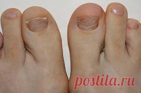 Отличные рецепты для лечения грибка ногтевых пластин  Средство из 3 компонентов избавит от такой ужасной проблемы, как грибок ногтей. Все знают, что это заболевание сопровождается неприятным запахом, исходящим от ног.  Также чешется и зудит кожа, может даже облезать, разрушается ногтевая пластина… Но, применяя это средство от грибка на ногах 2 раза в день, вы полностью вылечите заболевание даже без аптечных препаратов!  Нужно взять:  спирт перекись водорода уксус  Спо...