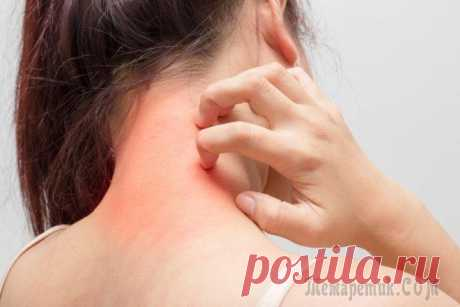 Атопический дерматит у взрослых симптомы и лечение