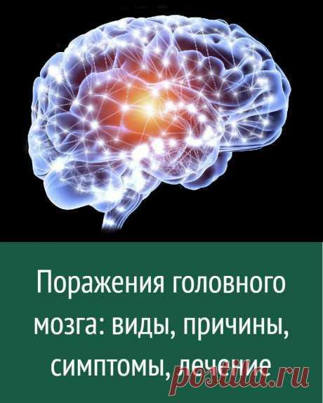 Поражения головного мозга: виды, причины, симптомы, лечение