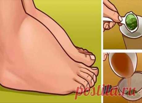 Оттекшие лодыжки и ступни больше не проблема! Это сресдтво лечит не симптомы, а первопричину! - Советы и Рецепты Существует множество факторов, от высокого кровяного давления до беременности, которые вызывают отек ног и лодыжек, а это в свою очередь может вызвать другие различные проблемы. При отеках, организм испытывает нагрузки при перемещении крови и жидкости в ногах, поэтому лодыжки, ступни и даже вся нога могут набухать. Отек сам по себе не вреден, но это очень …